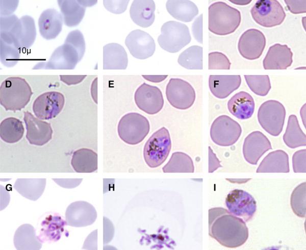 Plasmodium knowlesi, malaria parasite